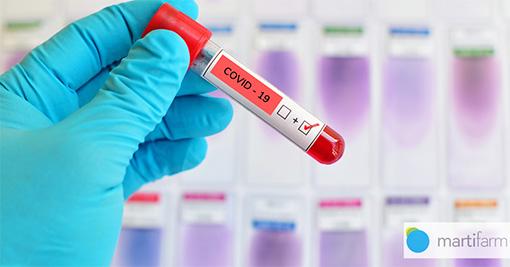 Epidemija koronavirusa COVID-19